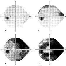 95f5dcbabc Είναι πολύ σημαντικό να τονιστεί ότι τα οπτικά πεδία δεν είναι πολύ  ευαίσθητα στην πρώιμη διάγνωση του γλαυκώματος.